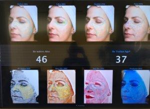 Hautanalyse Hautalter