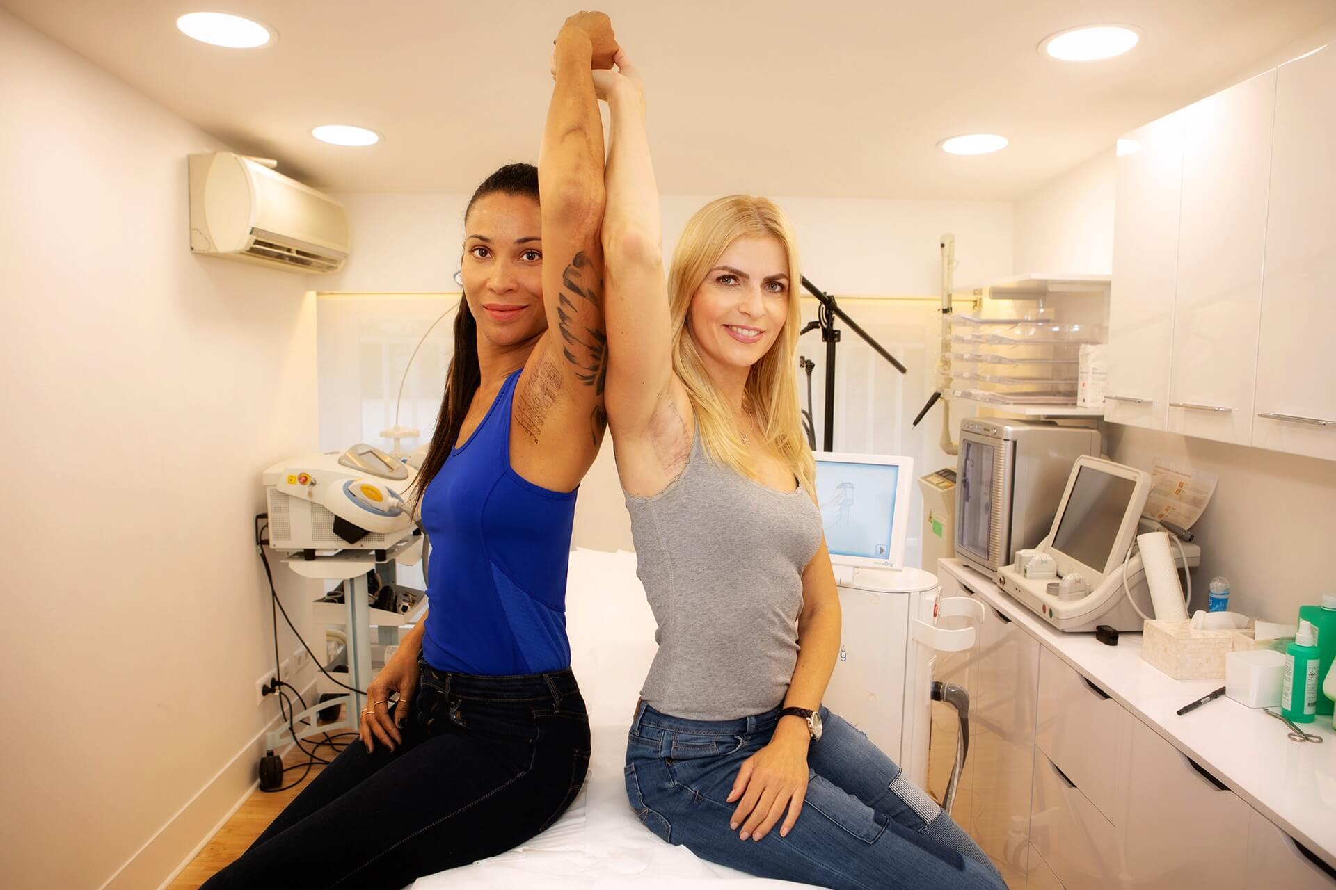 MiraDry – stopping underarm perspiration without surgery? A self test!