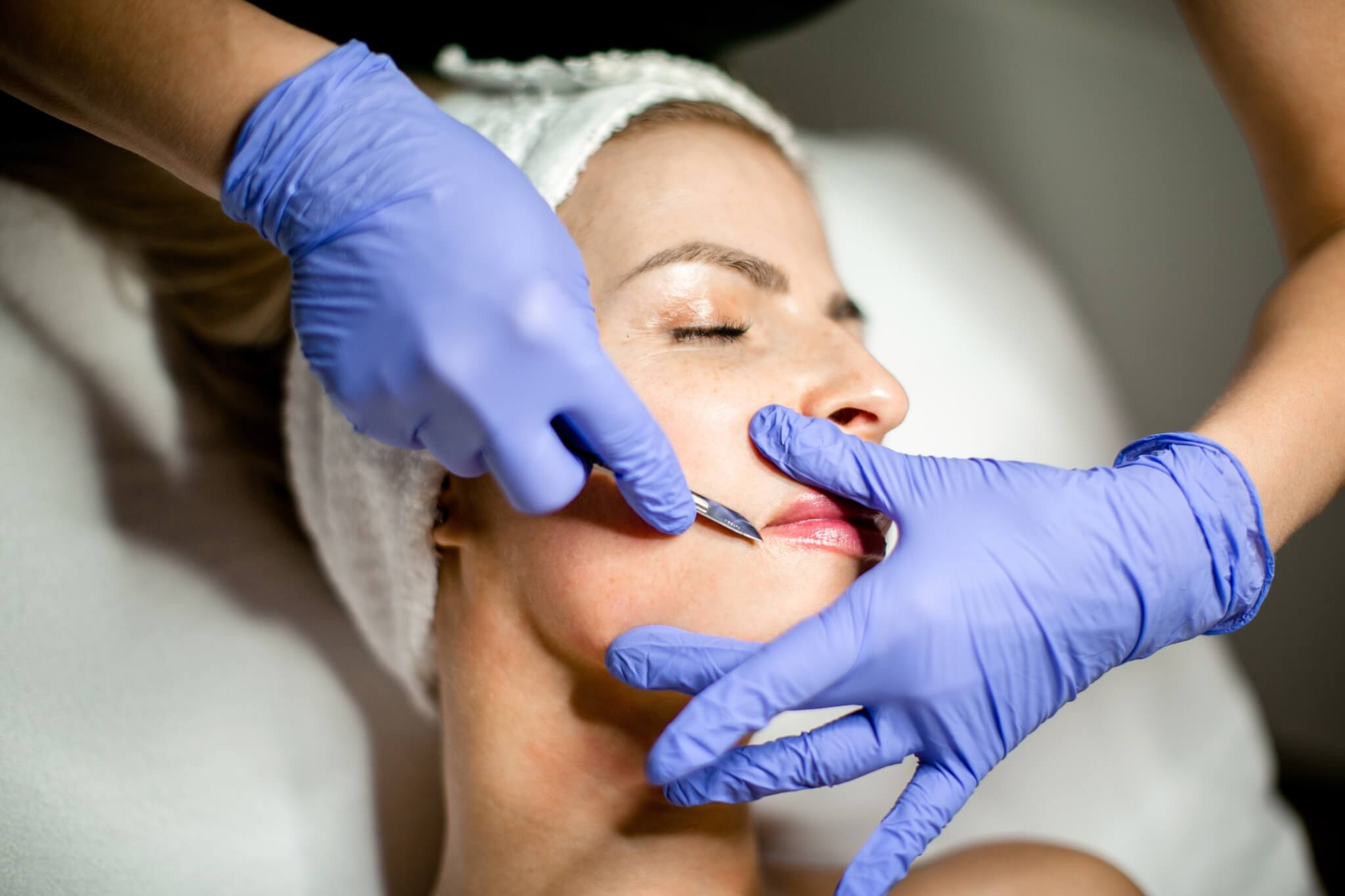 Dermaplaning – face shave with glow and anti-aging effect